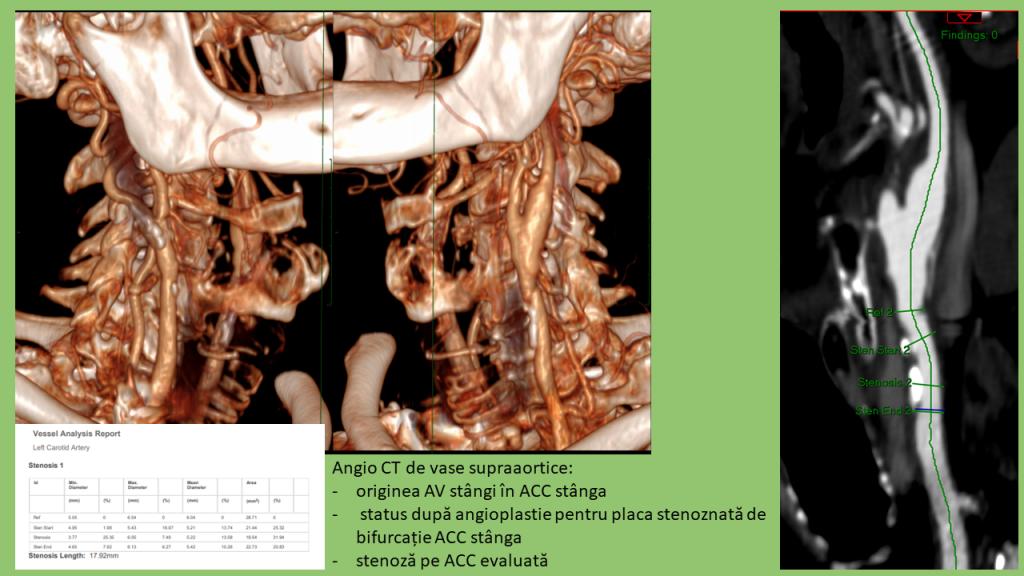 AngioCT - vizualizare vase supraaortice