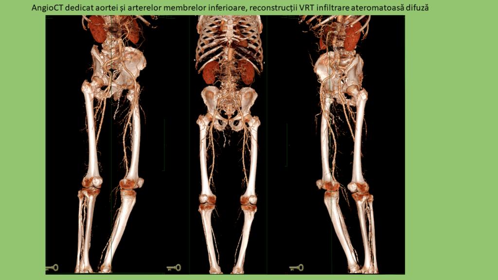 AngioCT - Aorta