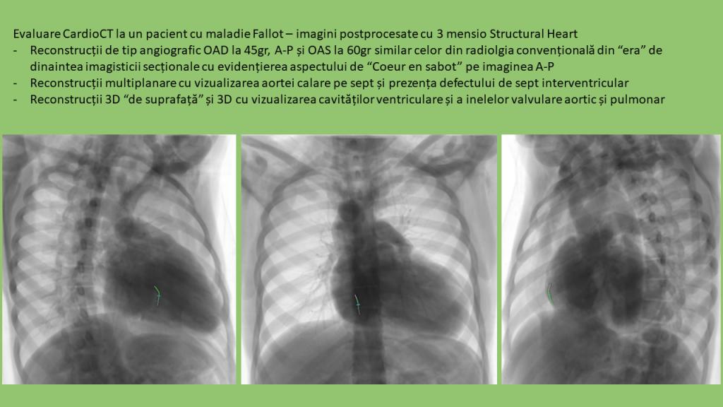 CardioCT - pacient cu Fallot