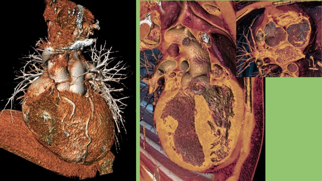 CardioCT - Fallot3